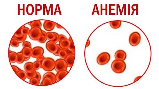 Признаки анемии