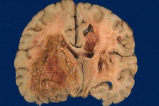 Глиобластома: симптомы и диагностика