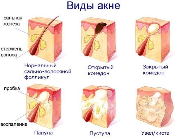 Лечение угрей, угри