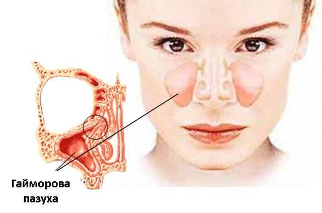 Гайморит носа