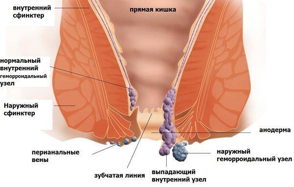 Геморрой, симптомы и лечение