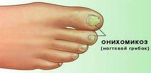 Как лечить ногти при кандидозе