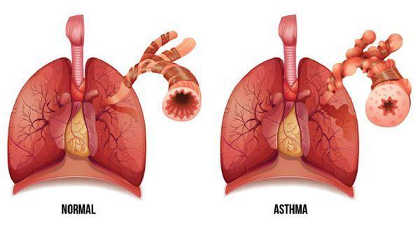 Первая помощь астматику