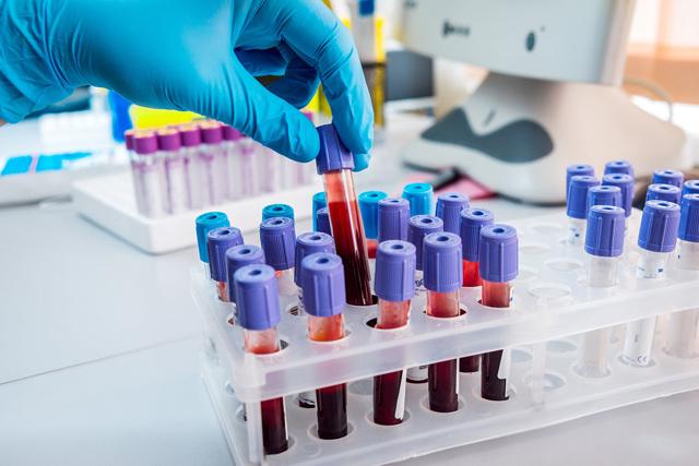 Анализы крови: виды и свойства лейкоцитов