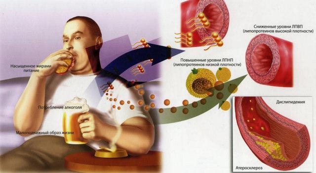 «хороший» холестерин