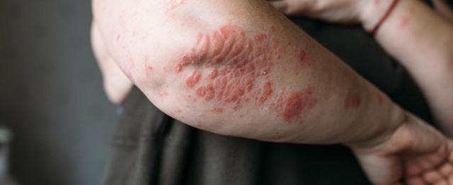 Аллергия и псориаз: сходство и различия