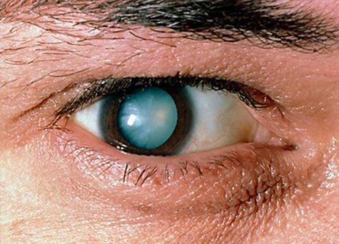 Оперативное лечение катаракты