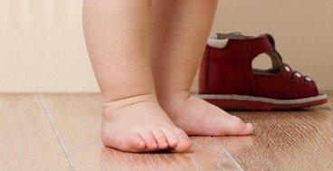 Причины и симптомы плоскостопия