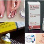 Кандидоз ногтей на ногах: симптомы и лечение