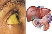 Гепатит: диагностика и лечение