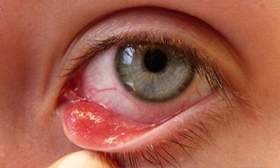 Симптомы болезней глаз