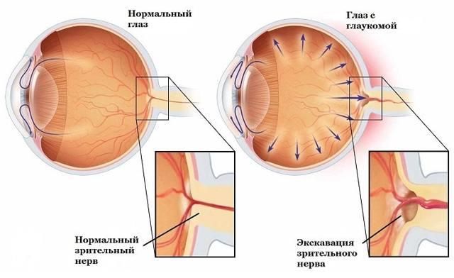 Катаракта и глаукома