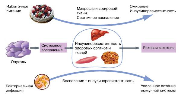 Инсулинорезистентность