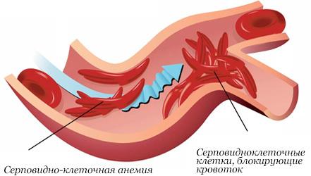 Особенности питания при анемии