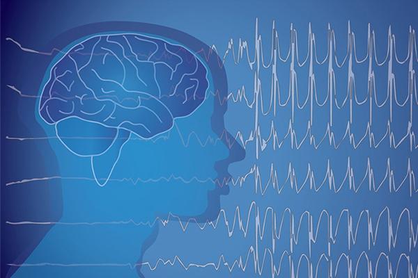 Редкие формы эпилепсии