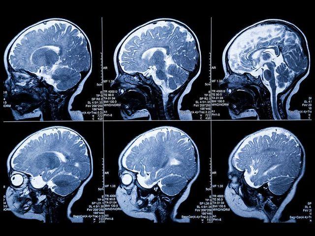 Как подготовиться к мрт головного мозга