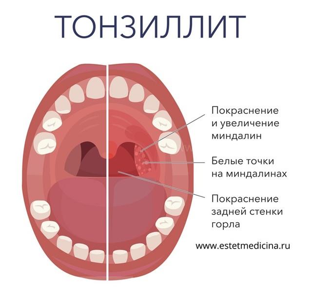 Ангина у беременных: правила лечения