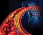Атеросклероз и способы борьбы с ним