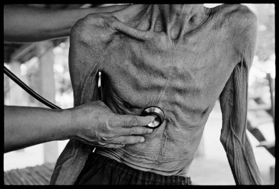 Общая информация и симптомы туберкулеза