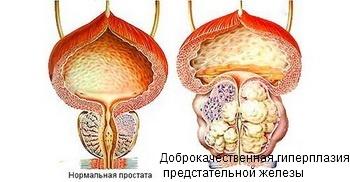 Пиелонефрит у мужчин