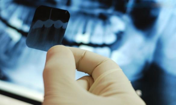 Факты и мифы о лечении зубов