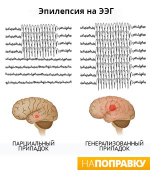 Опасные методы лечения эпилепсии