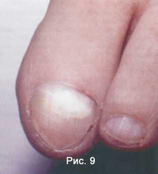 Кандидозный онихомикоз – грибок ногтей