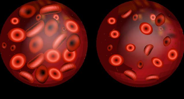 Анемия, симптомы анемии