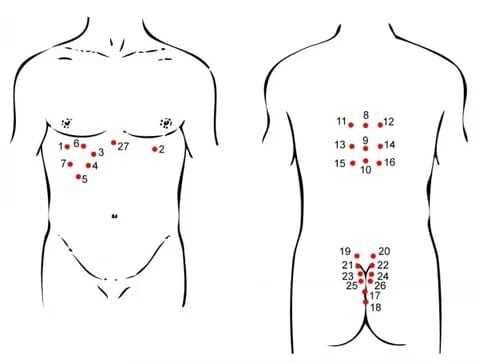 Лечение гайморита: гирудотерапия