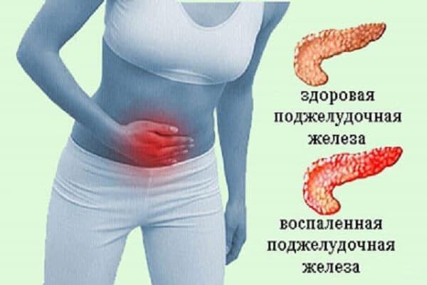 Лечение панкреатита