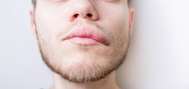 Домашнее лечение медикаментозной аллергии