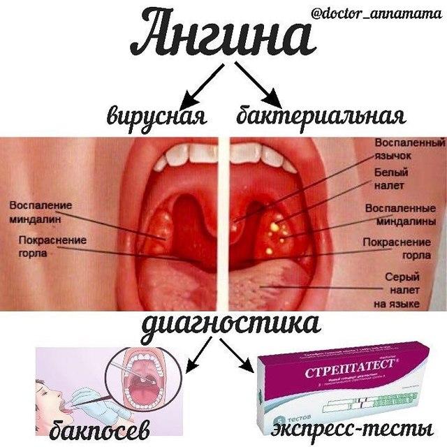 Ангина, лечение ангины