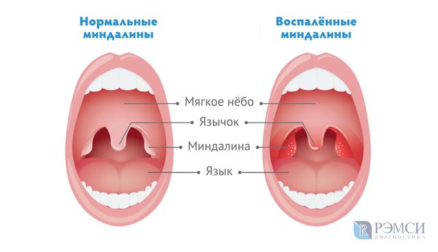 Ангина: осложнения