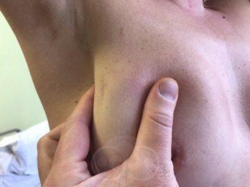 Рак груди - симптомы, диагностика