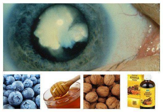 Опасные домашние способы лечения катаракты