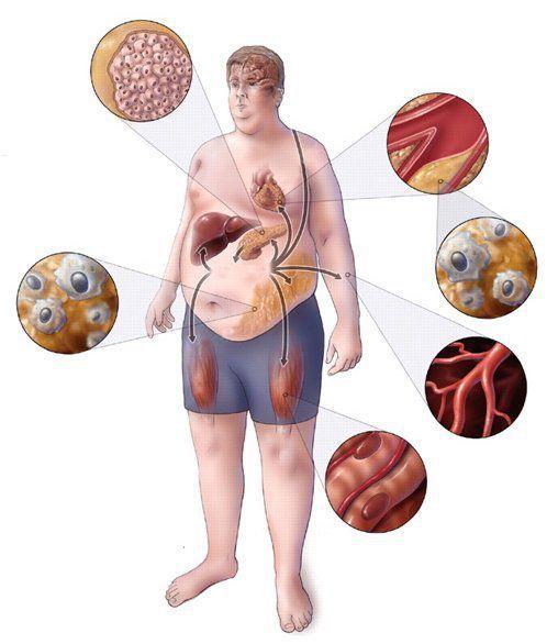 Метаболический синдром: факторы развития
