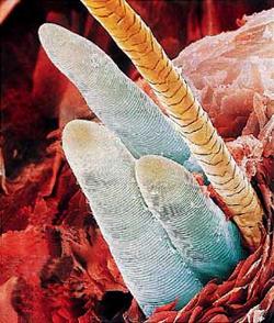 Болезни кожи: демодекоз
