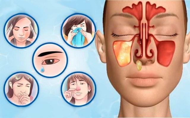 Летний гайморит: причины и симптомы