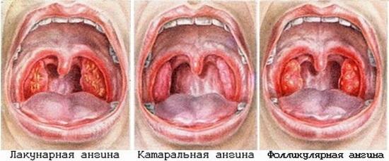 Летняя ангина: причины, виды и симптомы