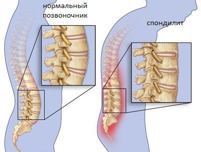 Туберкулез костной ткани