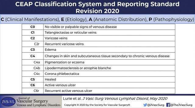 Варикозная болезнь: диагностика, симптомы и лечение