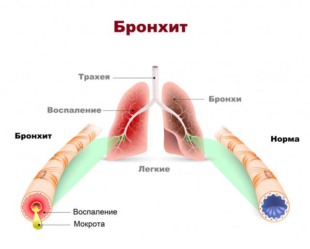 Диагностика заболеваний бронхов: основные методы