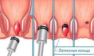 Геморрой, лечение