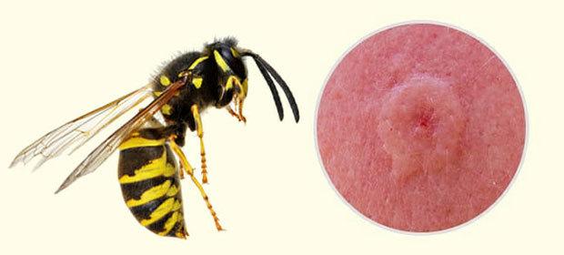 Безобидны ли укусы насекомых?
