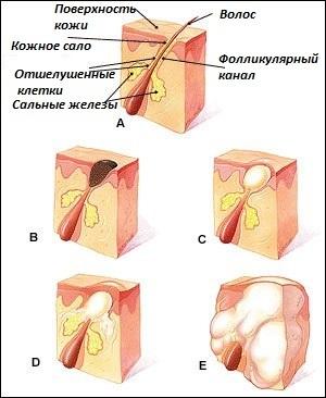 Фурункул на кончике, перегородке или на крыльях носа