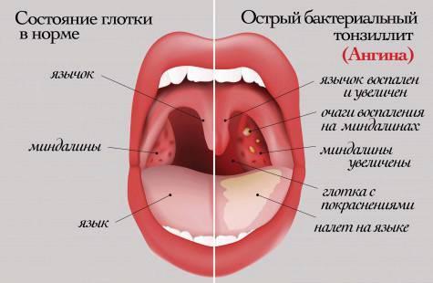 Осложнения ангины: как их предотвратить?