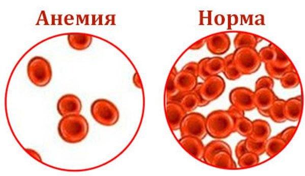 Гемолитическая анемия