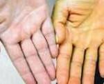 Гемолитическая анемия: причины и диагностика