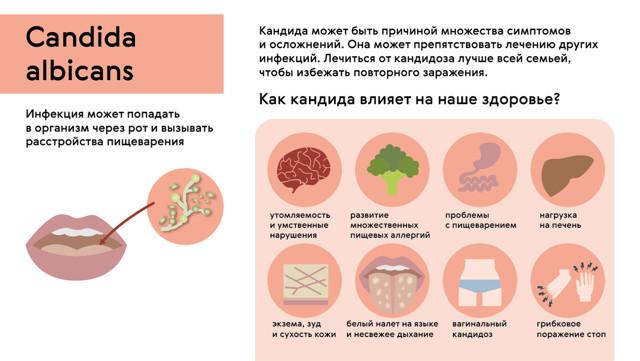 Здоровье, советы врача, цистит, молочница