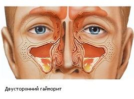 Гайморит: симптомы, лечение лазером